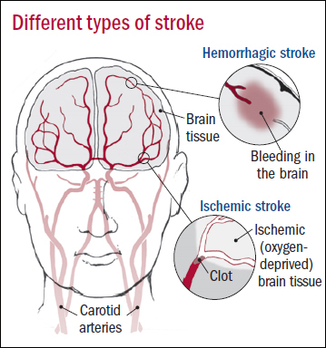 Types-of-stroke1